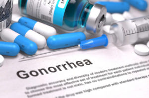 how to prevent gonorrhoea, STD, STI, Sexually Transmitted Diseases, STD Testing, gonorrhea, public health