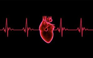exam live analysis artery attack beat cardiogram cardiograph cardiology chart