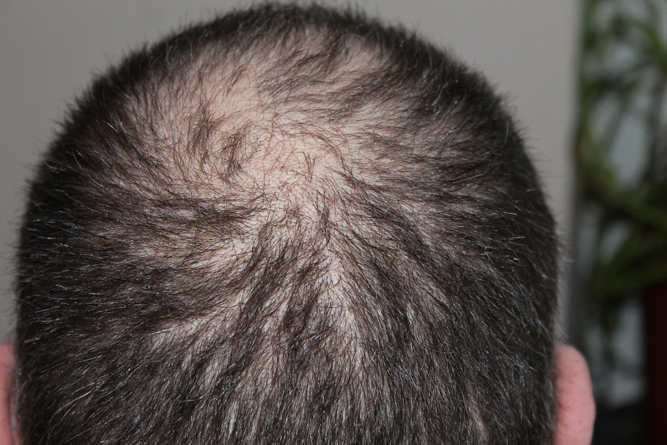 how to prevent hair loss, grey hair natural remedies, natural remedies for hair loss ,