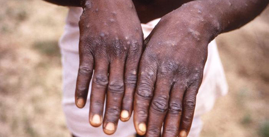 monkey pox in Nigeria