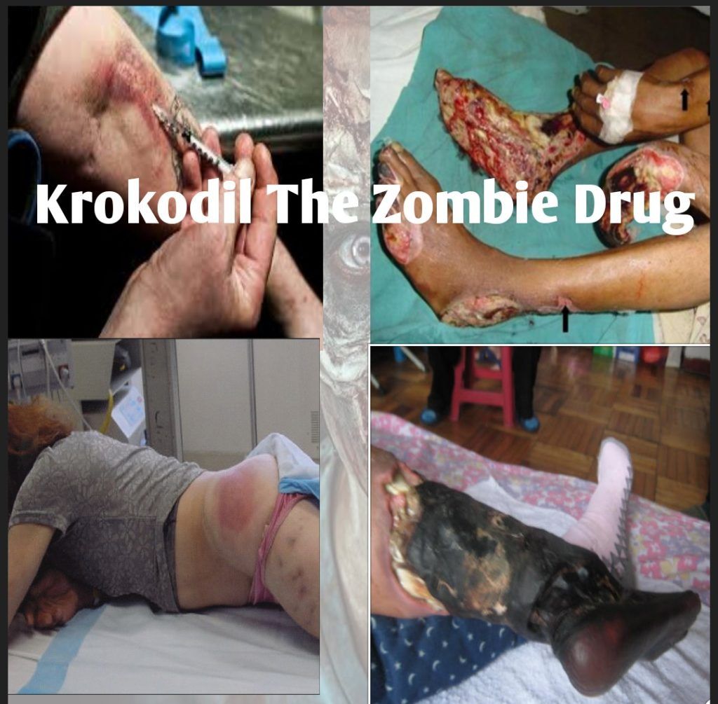 Krokodil Drug Effects