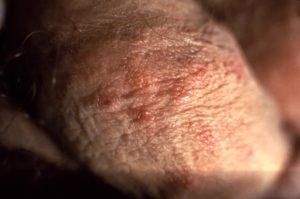 rash on my penis