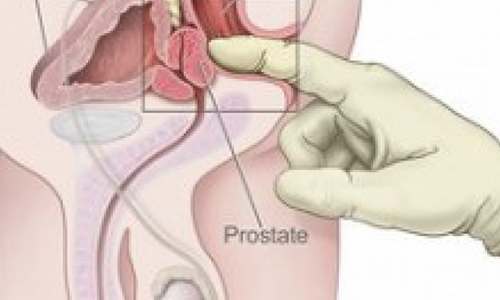 Do Prostate Massages Help Prevent cancer