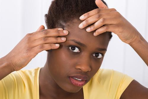 Why is Acne Common Among Teenagers