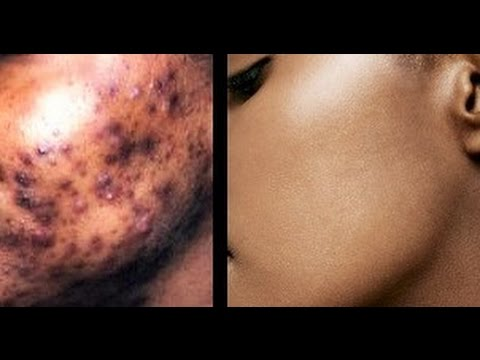 pimples and dark spots removal in Nigeria