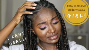 how to soothe itchy scalp
