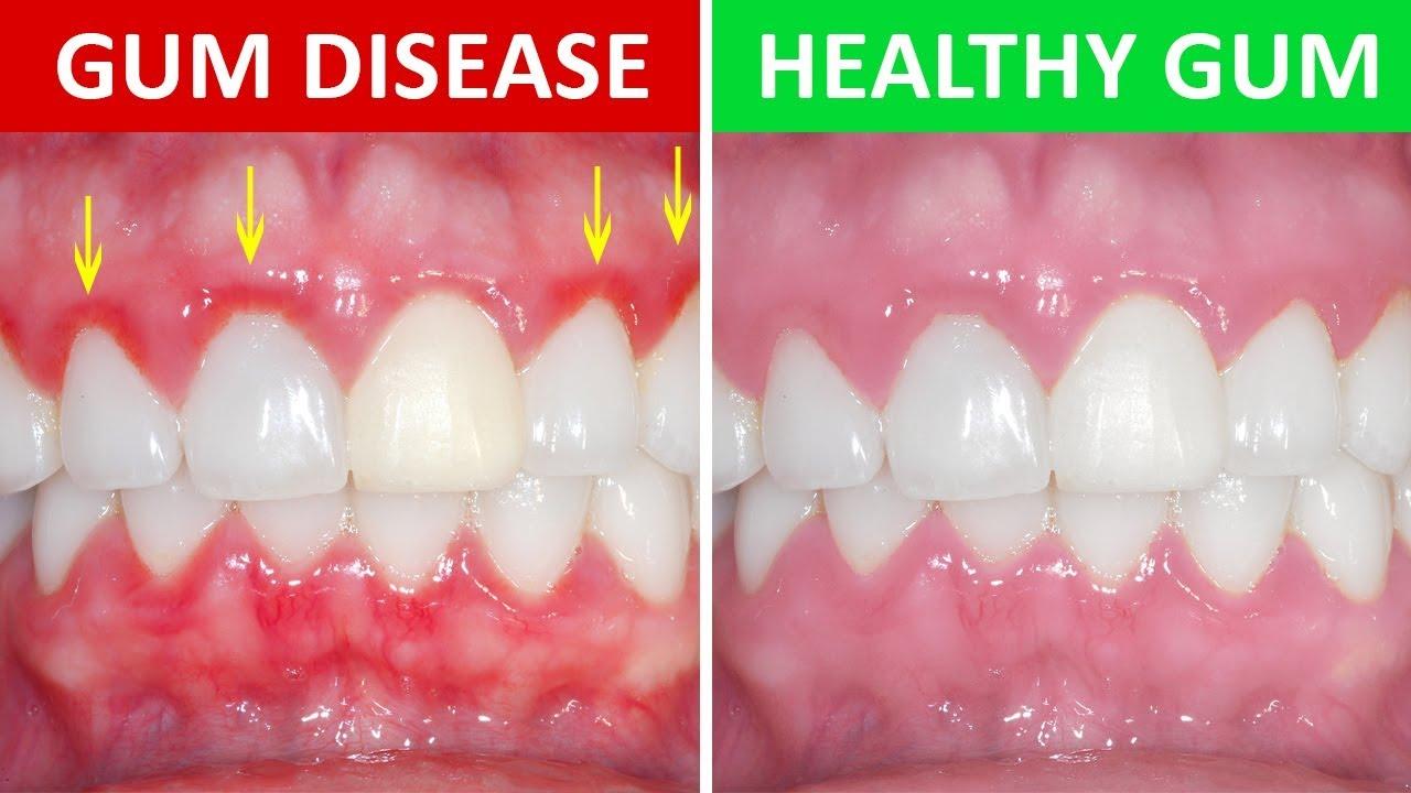 Gum Disease and kissing