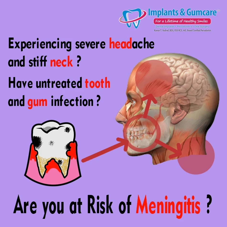 Meningitis and kissing