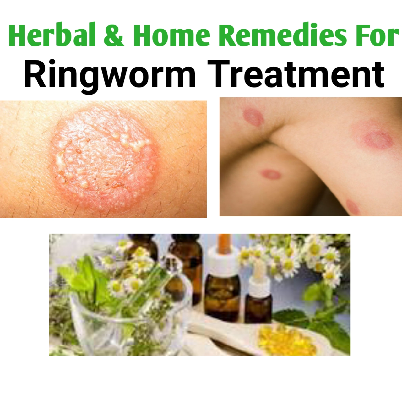 herbal Remedies For Ringworm Treatment