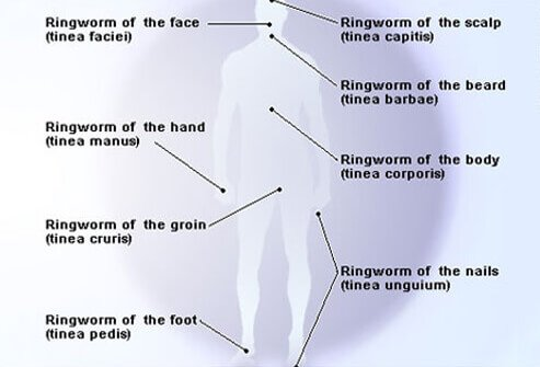 types of ringworm