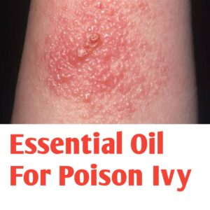 Essential Oil For Poison Ivy