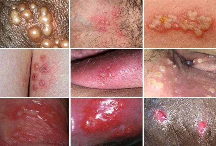 How Long Does a Herpes Outbreak genital Last?