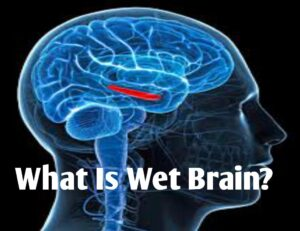 What is Wet Brain