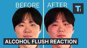Alcohol Flush Reaction
