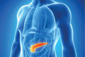 Alcoholic Pancreatitis