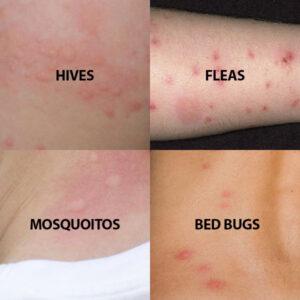 Bed bug bites vs. hives