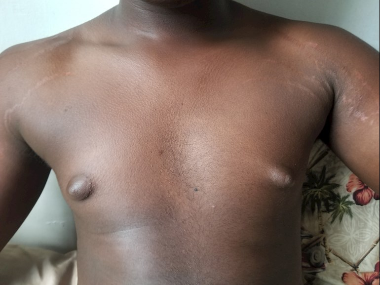 puffy nipples men