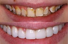 whitening veneers with baking soda