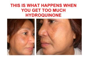 Does K Brothers Cream Contains Hydroquinone
