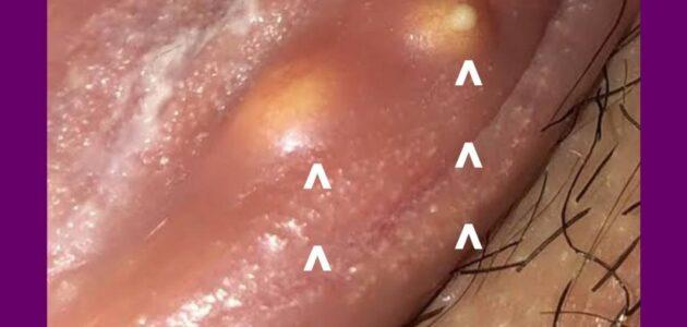 pimple like bump on clitorial hood