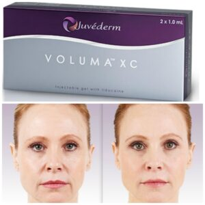 How Long Before Juvederm Takes Effect