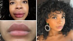 How Long Does Swelling Last After Juvederm