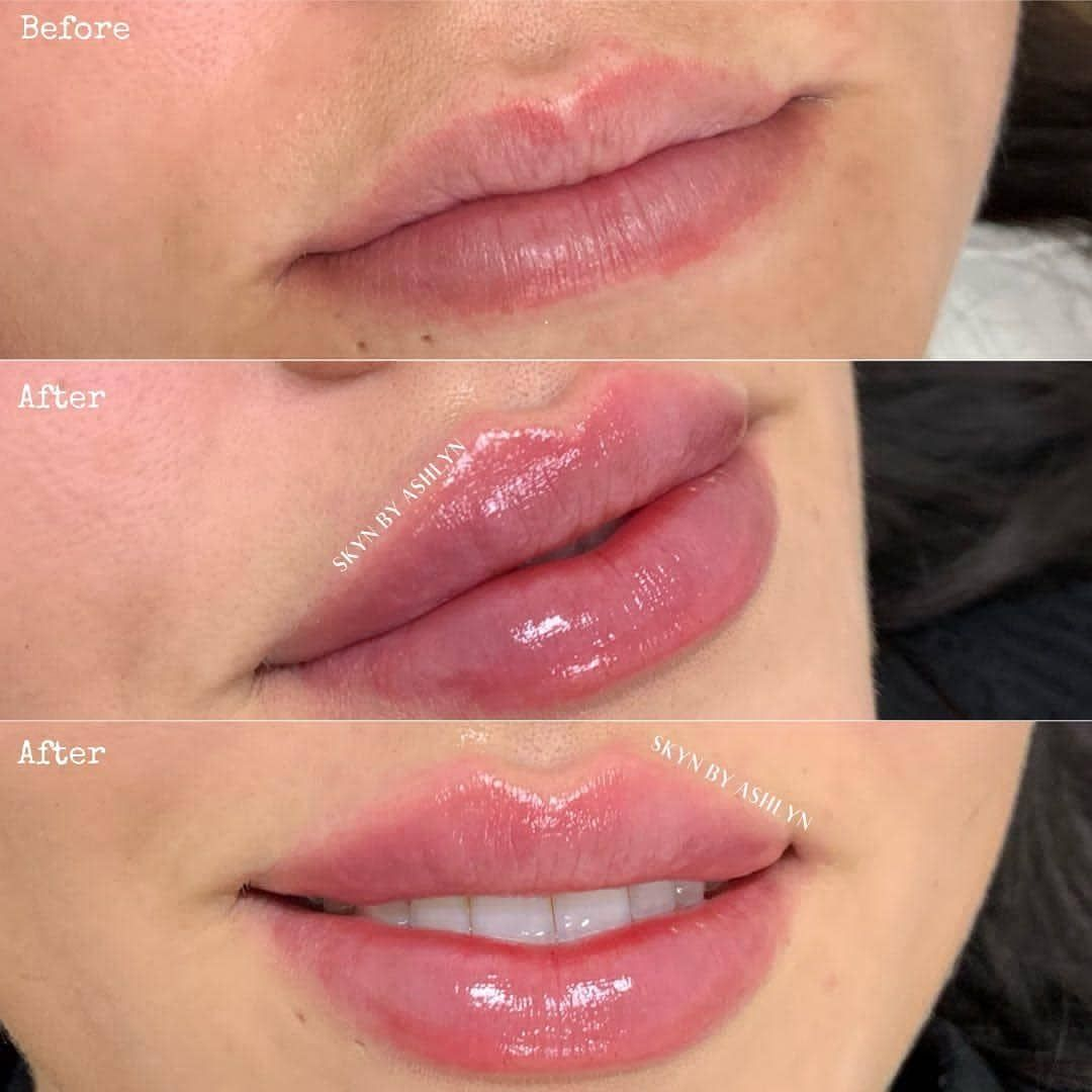How Long Does Swelling Last After Lip Filler