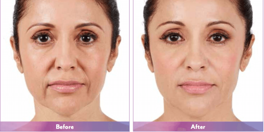 Juvederm before and after picture