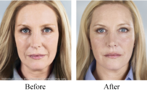 Sculptra before and after pictures