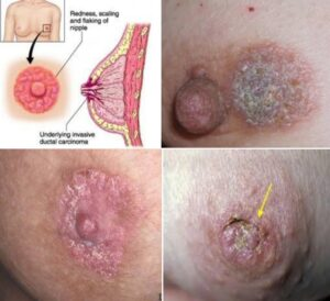 What Does A Rash From Breast Cancer Look Like