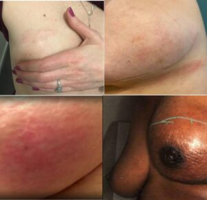 What does inflammatory breast cancer rash look like