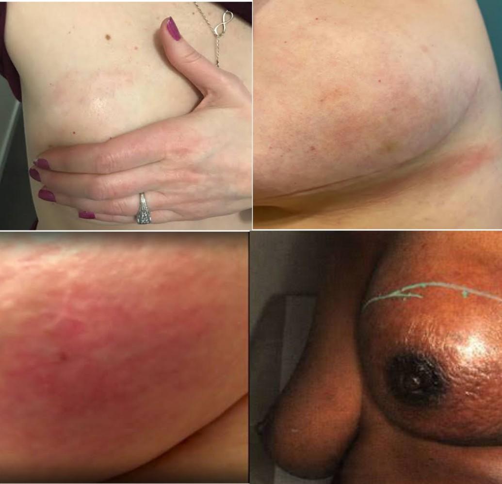 What does inflammatory breast cancer rash look like