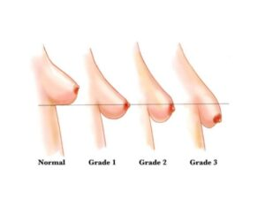 stages of breast sagging