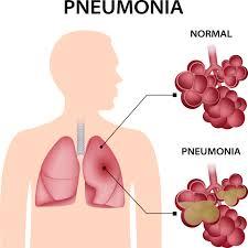 Can Flagyl Treat Pneumonia