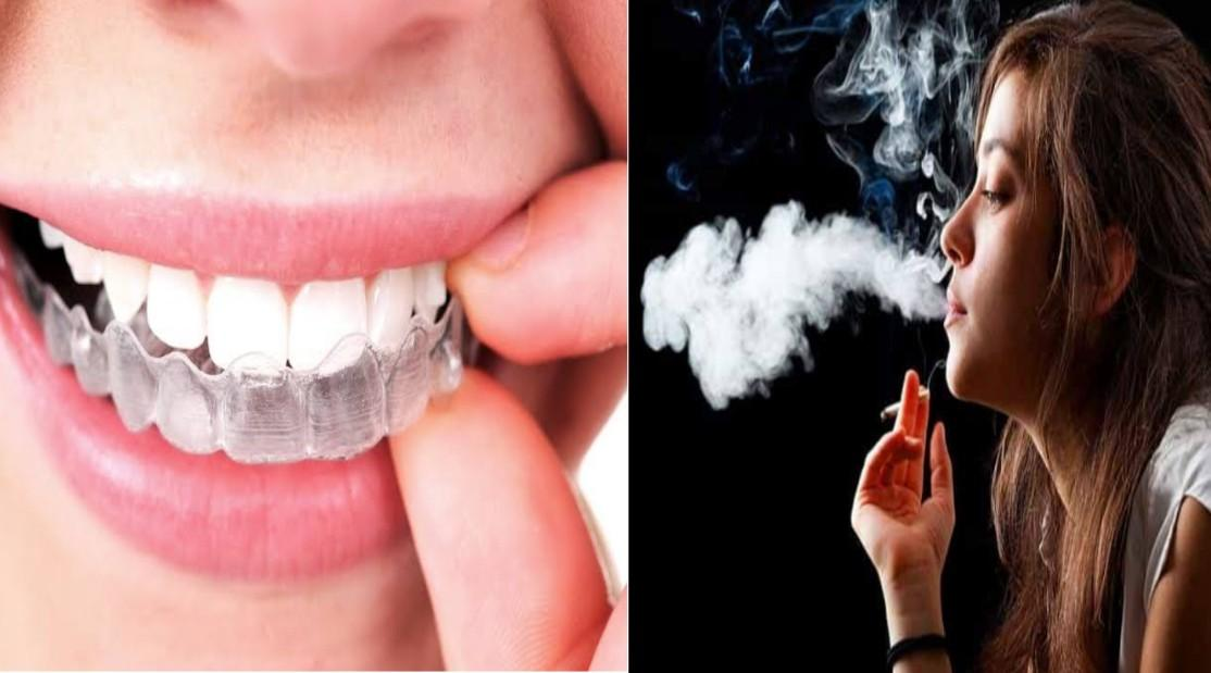 Can You Smoke With Invisalign