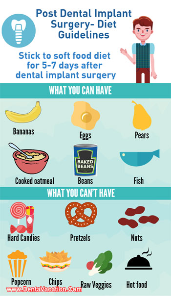 How Long To Eat Soft Foods After Dental Implant