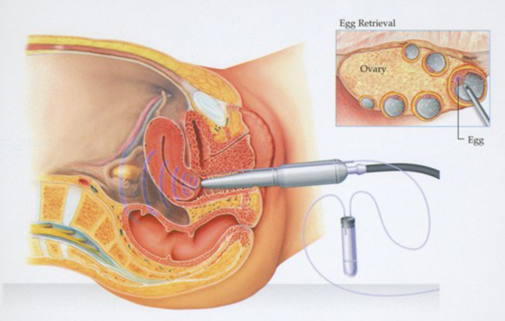 How to Become An Egg Donor In Nigeria
