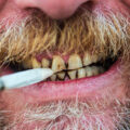 How does Smoking Affects Your Teeth