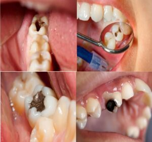 what does a cavity look like