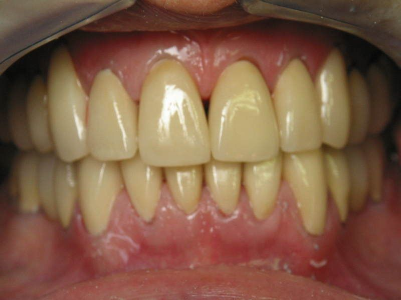 Why Are My Teeth Yellow When I Brush Them Everyday
