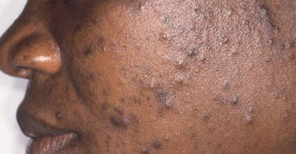Does Colostrum Cause Acne