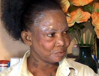 Effects of Unsafe Skin Lightening Ingredients
