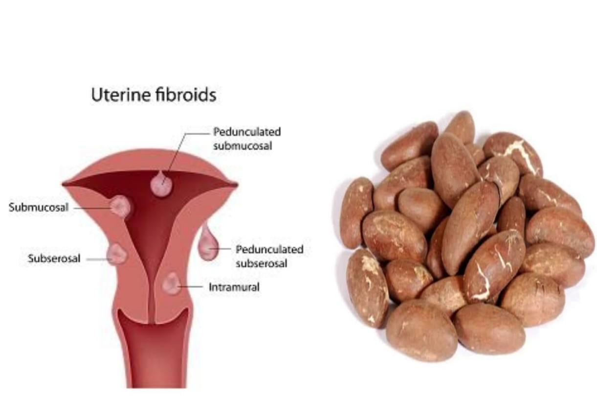 bitter kola and fibroid