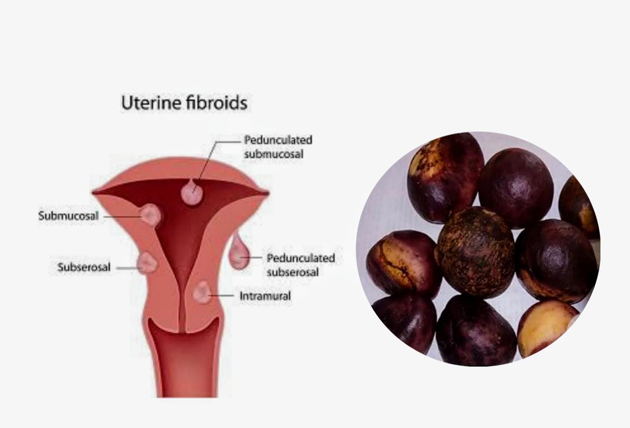 wonderful kola and fibroid