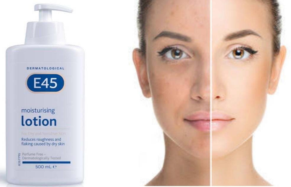 Does E45 lotion lighten skin