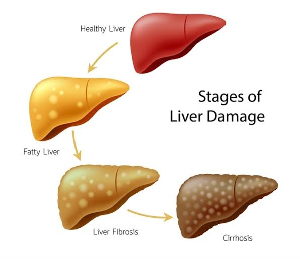 How Long To Abstain From Alcohol To Repair Liver