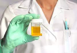 What Does EtG Mean On A Drug Test2