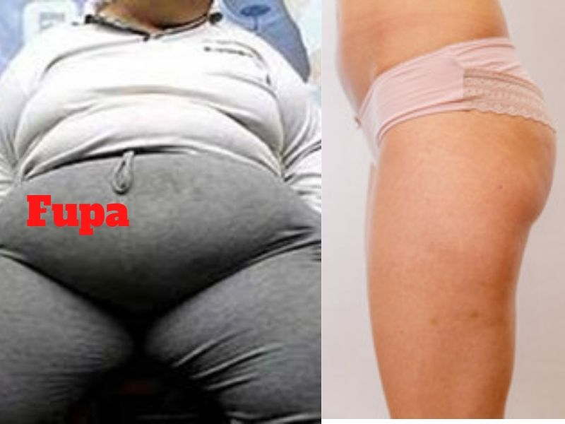 how to get rid of fupa
