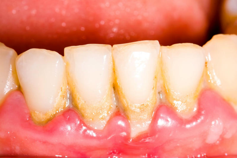 How To Get Rid Of Calcium Deposits On Teeth