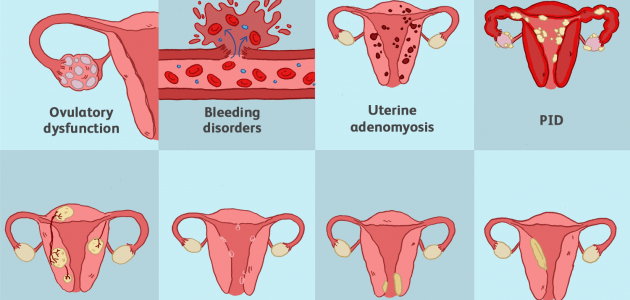 How Can I Make My Uterus Healthy